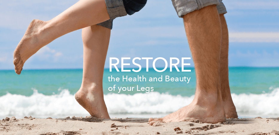 Varicose Veins are not just a cosmetic concern